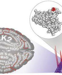 Ein wichtiger Teil im Krankheitsrätsel Parkinson gelöst
